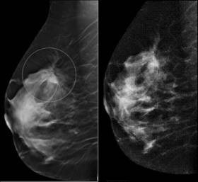 Tomosynthése-Mammographie-3D
